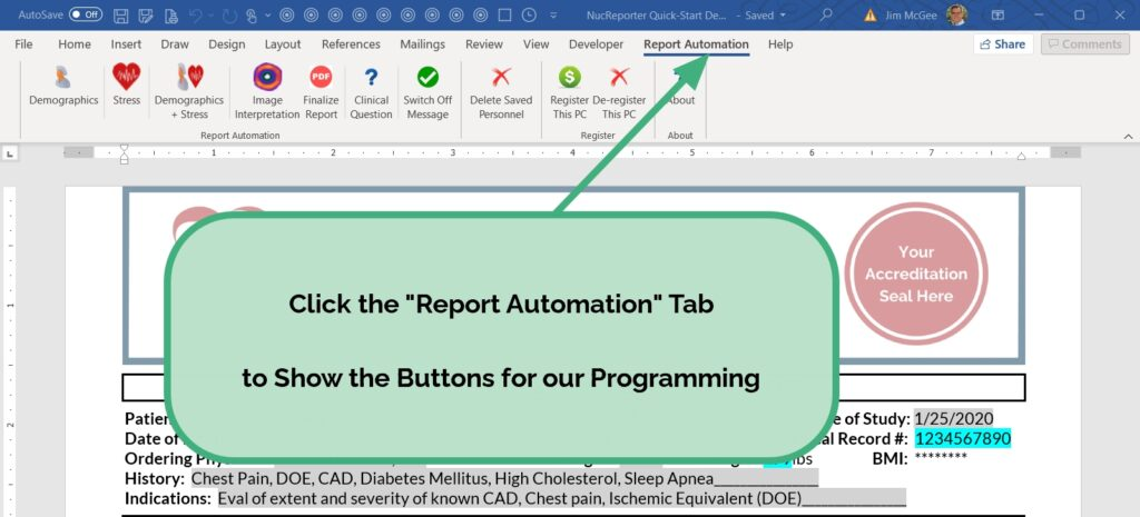 Click the Report Automation Tab